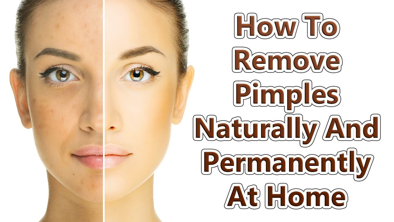 How to get rid of pimples with baking soda Baking soda for pimples foto