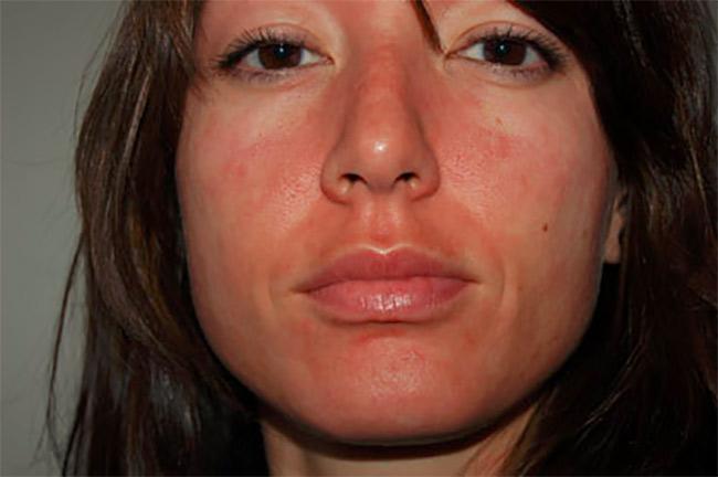 How do i reduce facial redness
