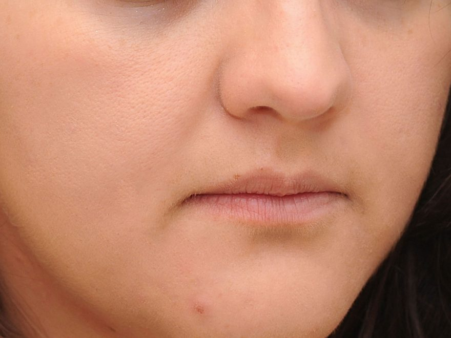 Home remedies for acne redness and swelling