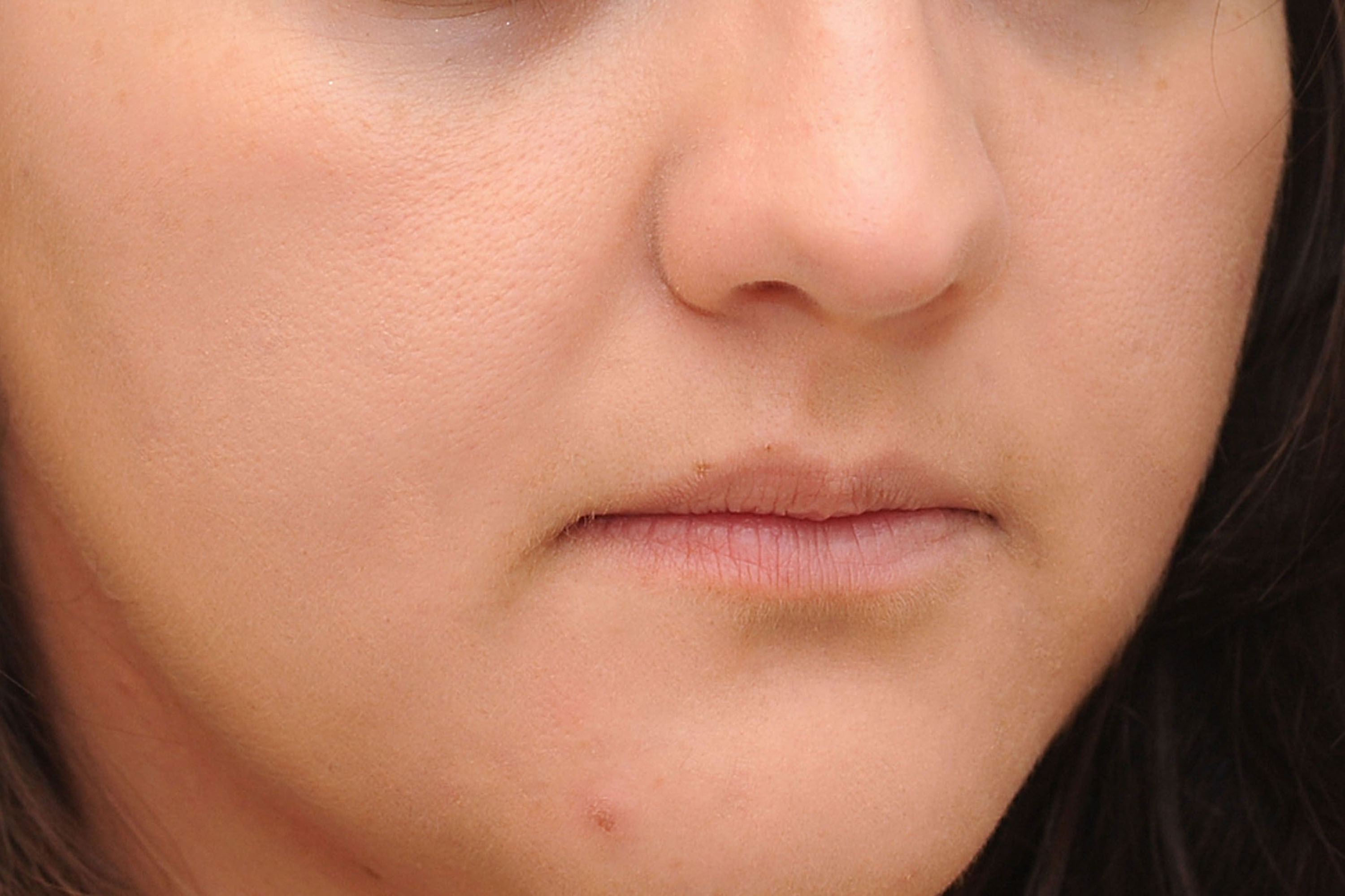 How to Reduce Pimple Swelling : Home Remedies to Get Rid of Pimple