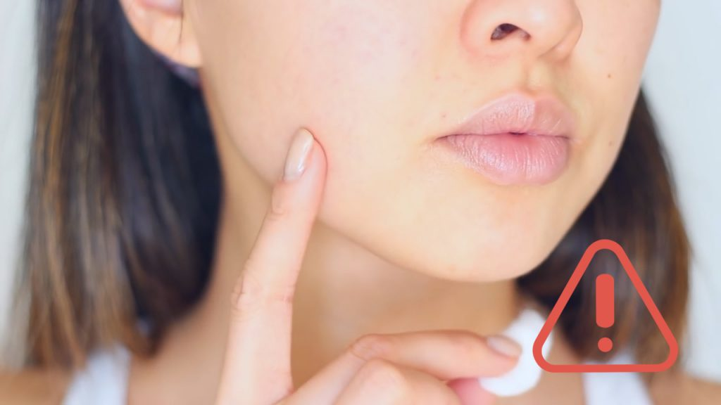 How to Reduce Pimples Swelling Overnight