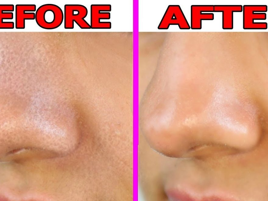 How to Reduce Pore Size On Nose