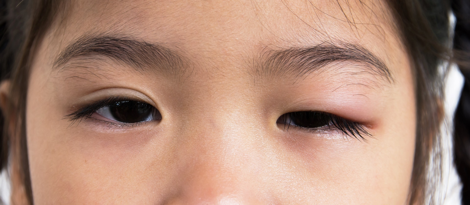 How to Reduce Swollen Eyelids: Step by Step Guide
