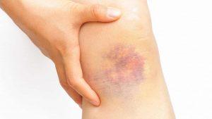 Get Rid Of Bruising Quickly