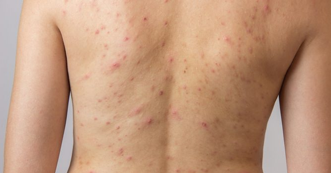 How to Get Rid of Scars on Back