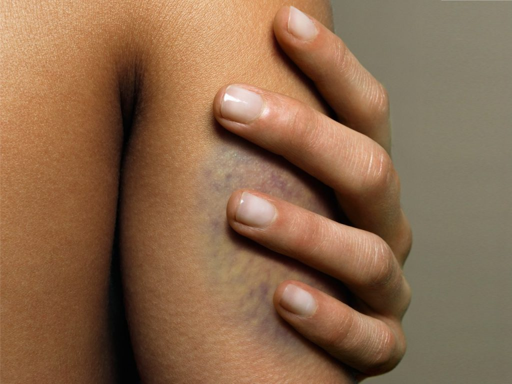 How To Make A Bruise Go AwayIn One Day