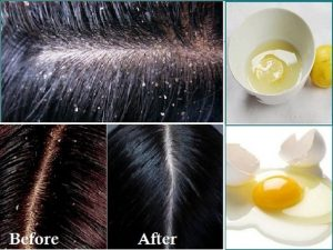 Way to Get Rid of Dandruff by Home Remedies Fast