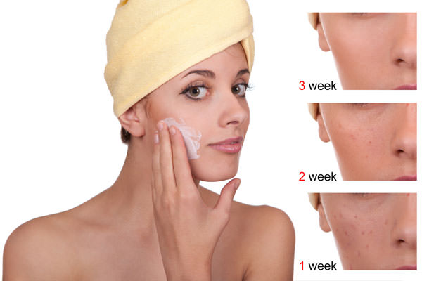Naturally Reduce Scars
