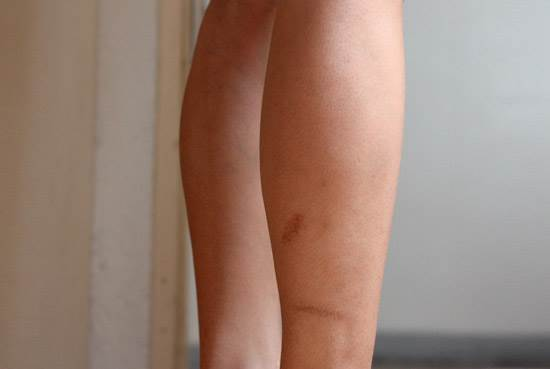 How To Get Rid of Scars on Legs
