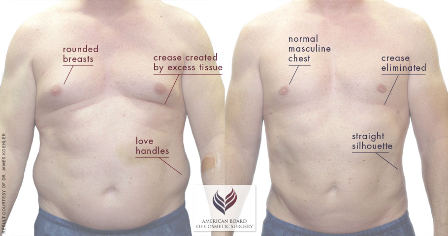 Way to Reduce Chest Fat Naturally