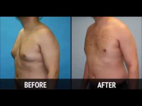 How to Reduce Chest Fat for Male