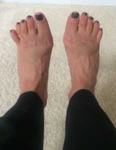 Swelling After Foot Surgery Normal