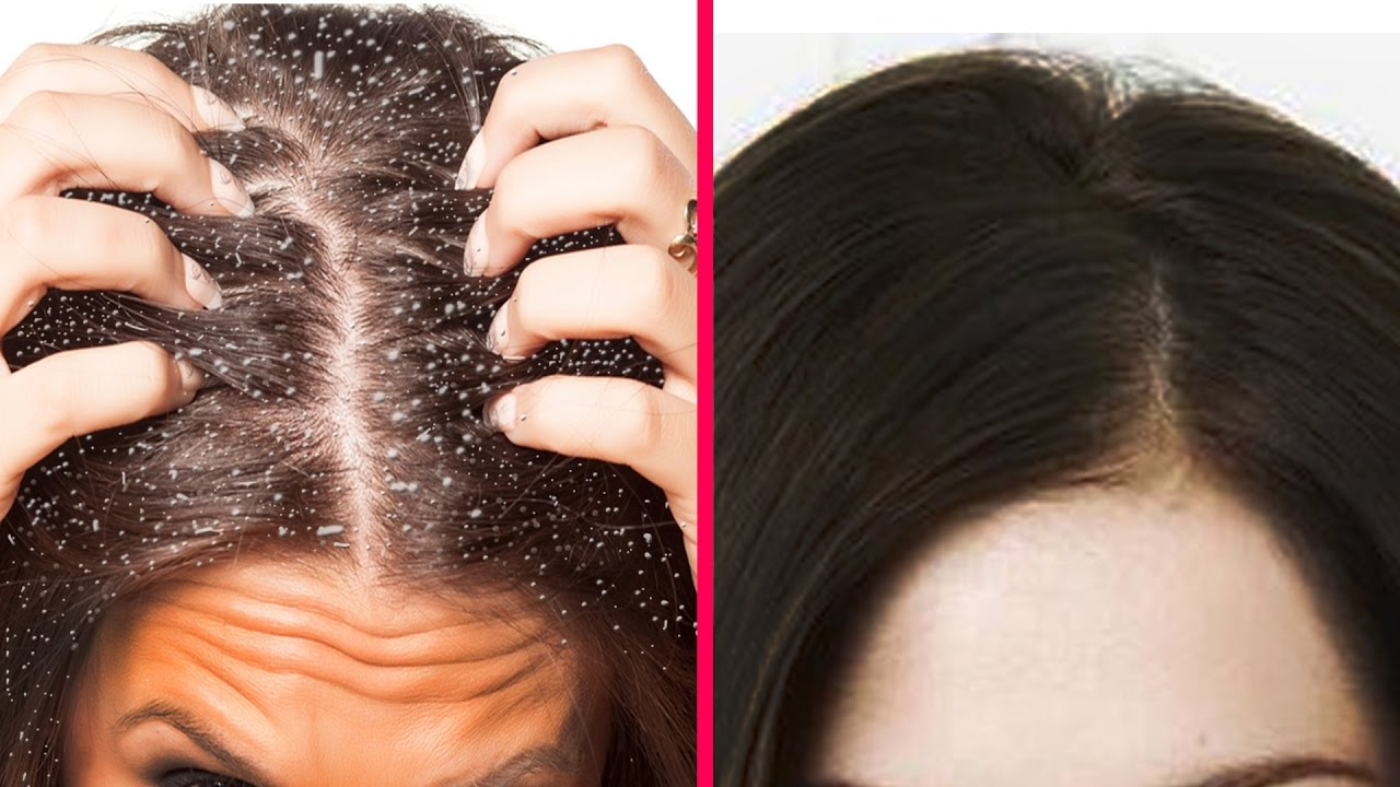 How To Get Rid of Dandruff : Home Remedies For Dandruff