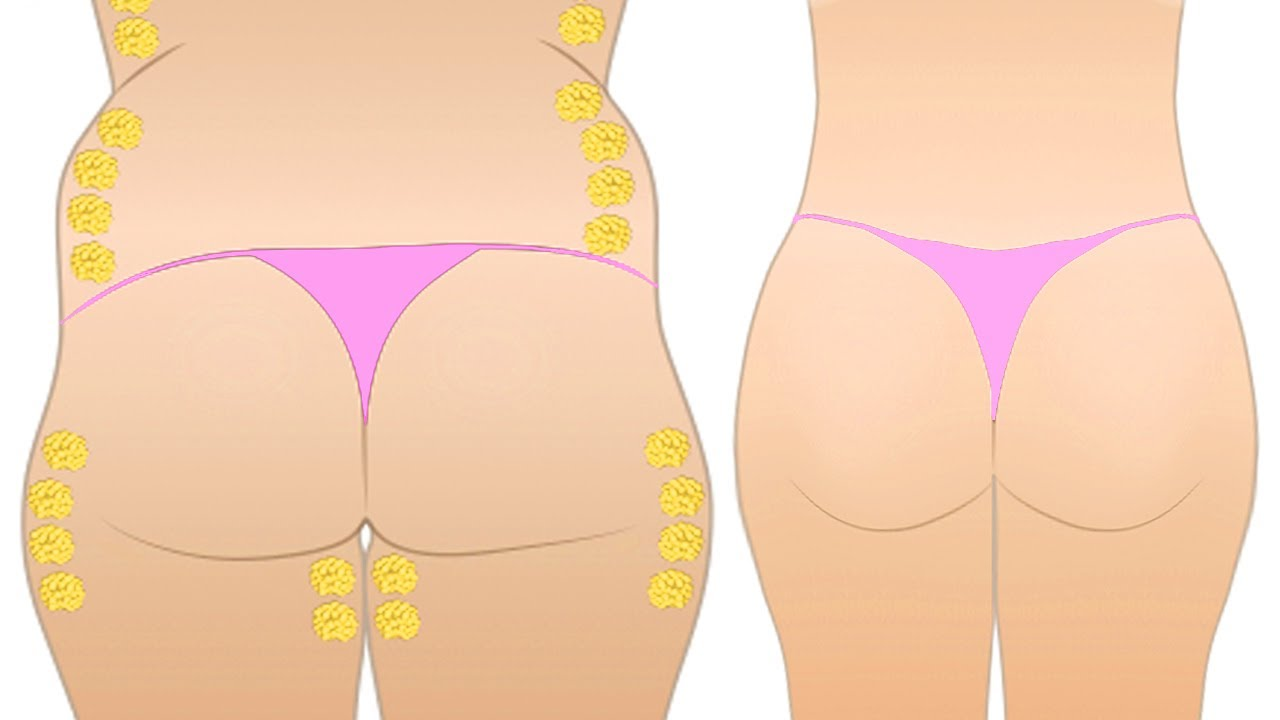 How to Reduce Hips and Thighs Naturally in 1 Week