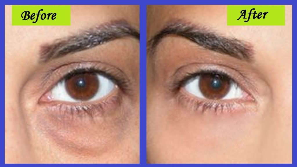 How to Get Rid of Bags Under Eyes Home Remedies