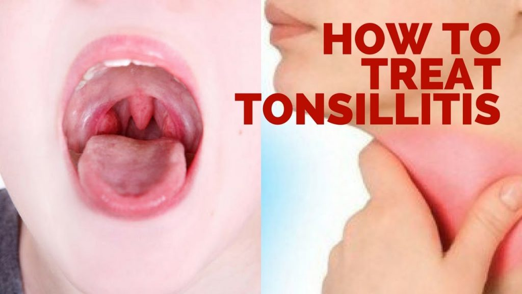 How to Get Rid of Swollen Tonsils Fast