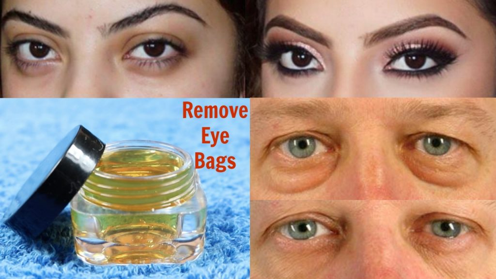 How to Reduce Eye Bags Naturally