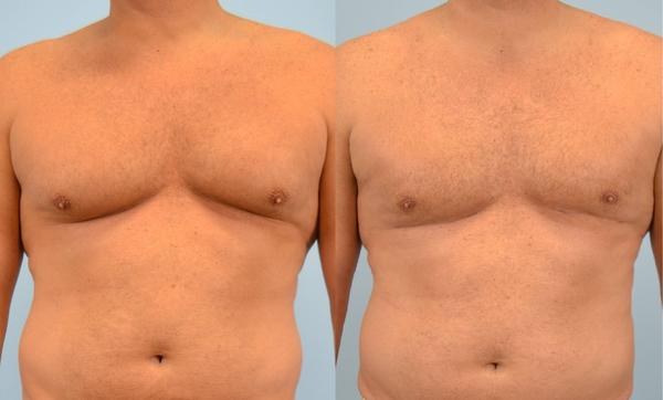 How to Reduce Chest Fat in a Week